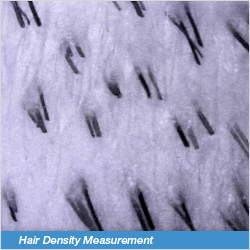 Hair Density Measurement