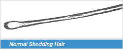Normal Shedding Hair