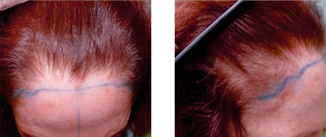 Female Hair Loss: Thinning Hair