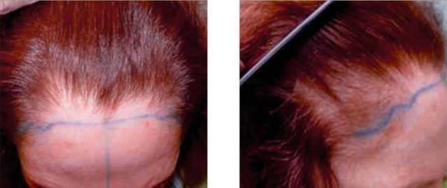 Female Hair Loss: Thinning Hair