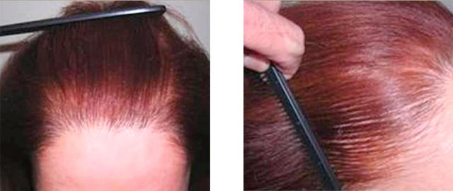 Successful Female Hair Restoration