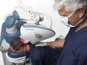 Frequently Asked Questions About ARTAS® Hair Transplant