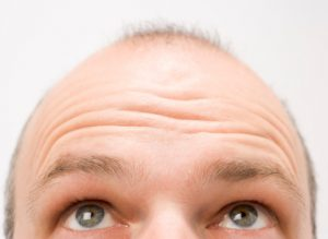 Hairlines and Heart Health- Is Hair Loss a Sign of Heart Disease?