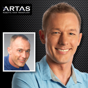 ARTAS-Transplant-Before-and-After-Photos