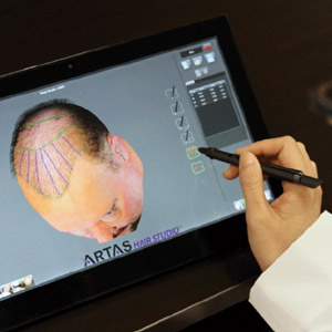 Hair-Loss-Treatment-Revolutionized-by-New-Robotic-Technologies