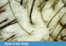 Back of the Scalp