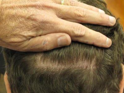 Moving Toward Scarless Hair Transplant