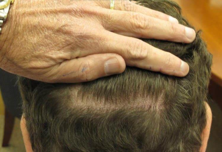 After Hair Transplant - Patient Photo 1