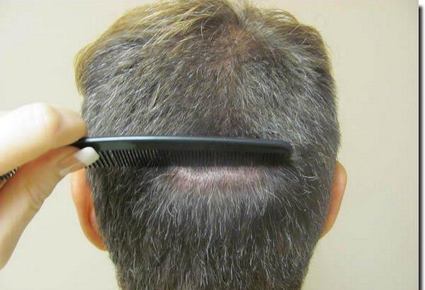 After Hair Transplant - Patient Photo 3