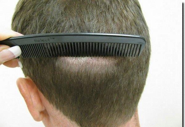 After Hair Transplant - Patient Photo 4