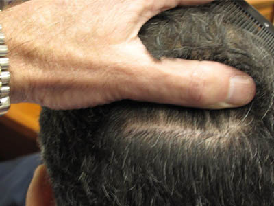Do Hair Transplants Leave Scars?