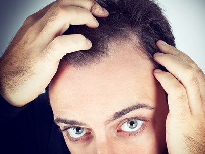 What is the Best Way to Detect Hair Loss?