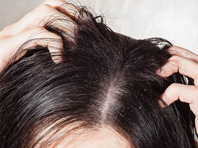 Will Dandruff Cause Hair Loss?