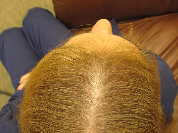 After Photo: Treating Hair Loss with Stem Cells
