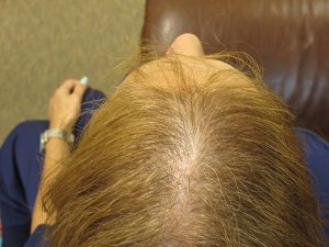 Before Photo: Treating Hair Loss with Stem Cells