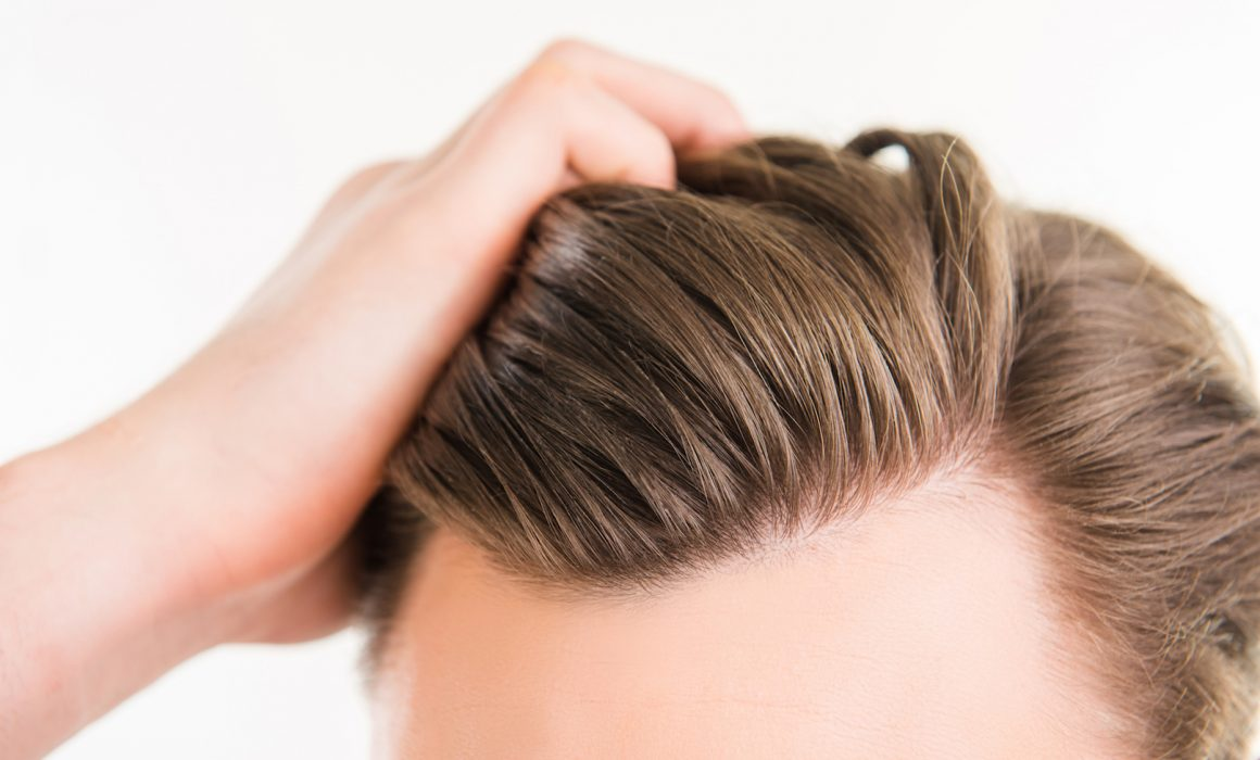 5 Benefits of an FUE Hair Transplant