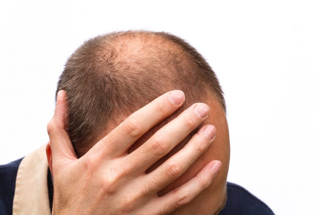 psychological impact of hair loss