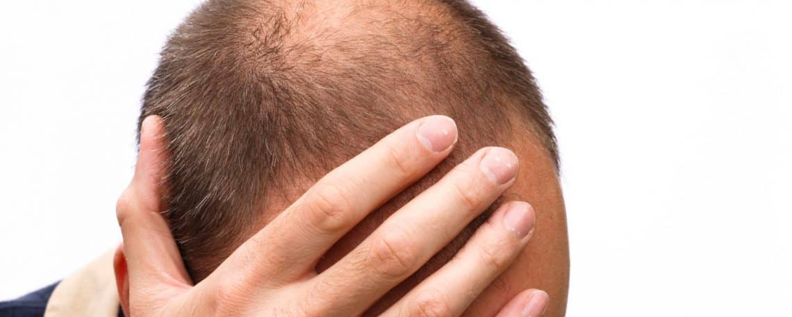 psychological impact of hair loss