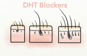 Understanding the Side Effects of DHT Blockers - Hair