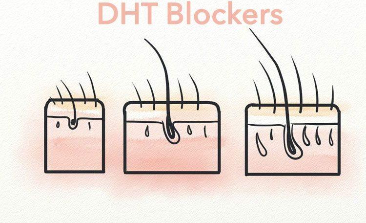 DHT Blockers Dutasteride
