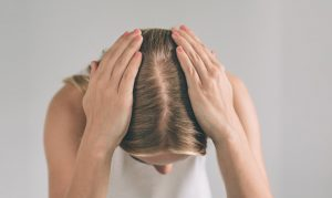 Healthy Scalp
