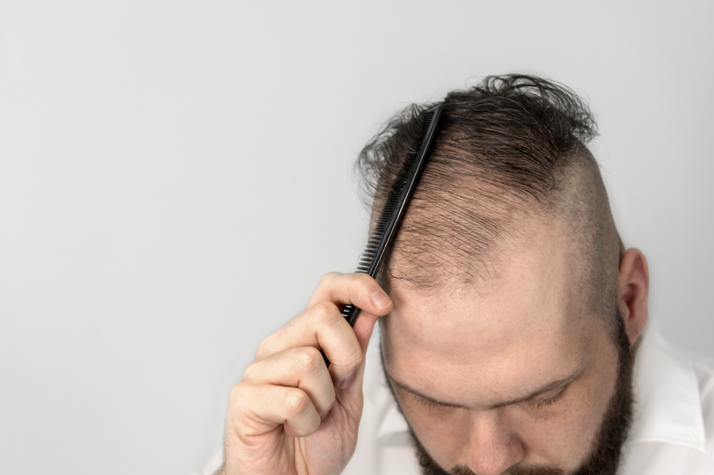 How To Best Prepare for a Hair Transplant