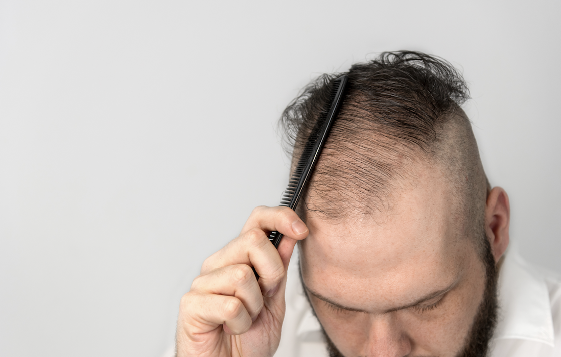 Top 3 Topical Finasteride Myths Miami Hair Institute