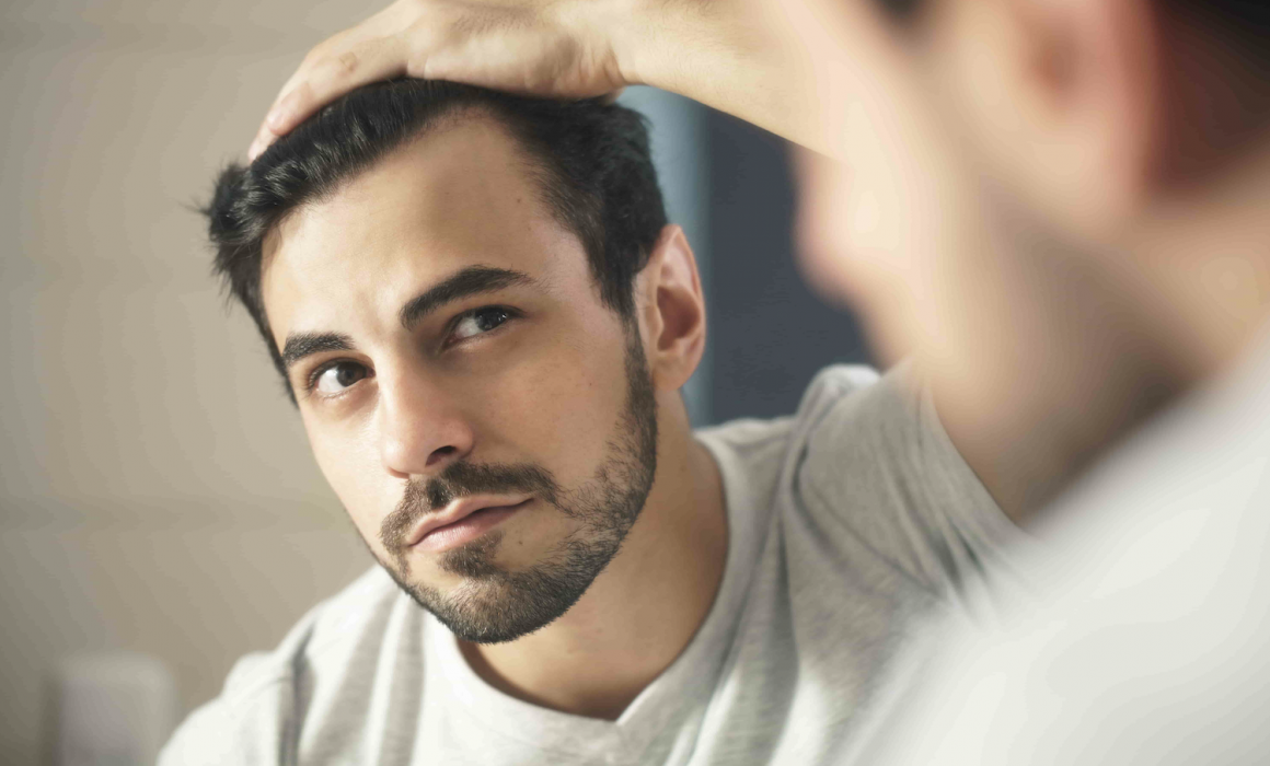 2019 Treatments for Hair Loss in Men