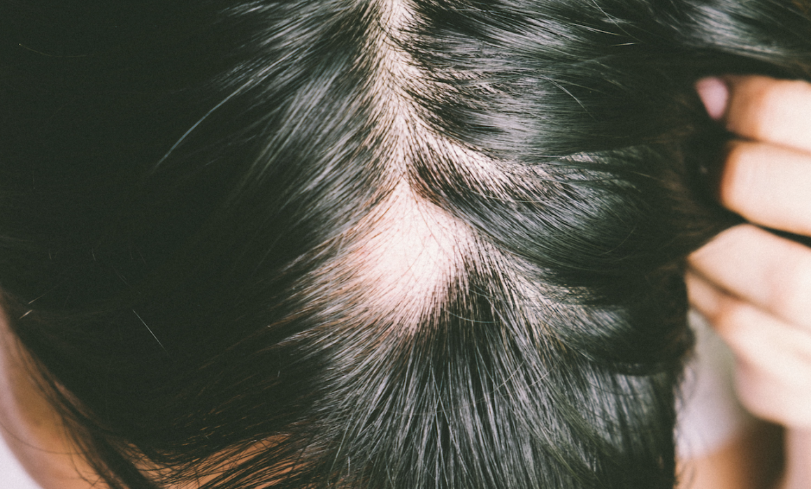 Alopecia Areata – What You Need to Know