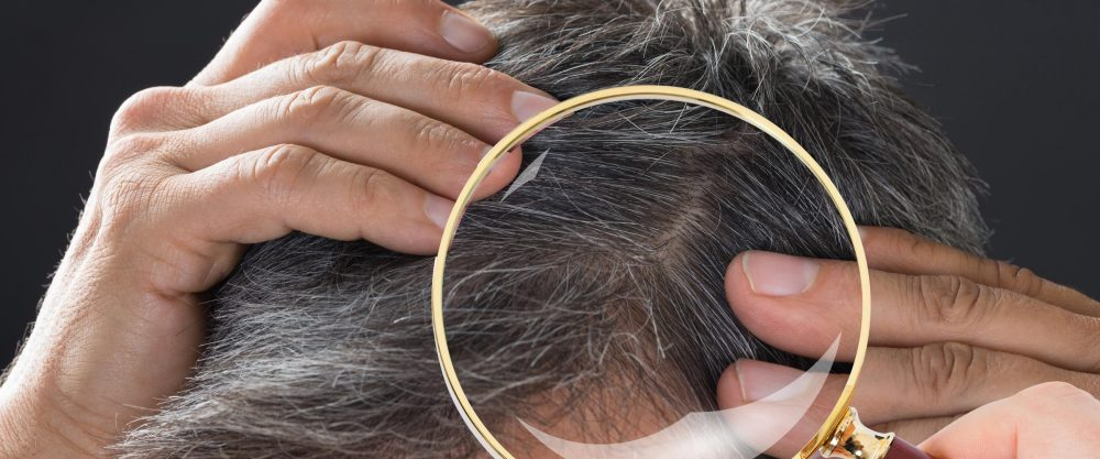 Hair Loss vs. Hair Shedding