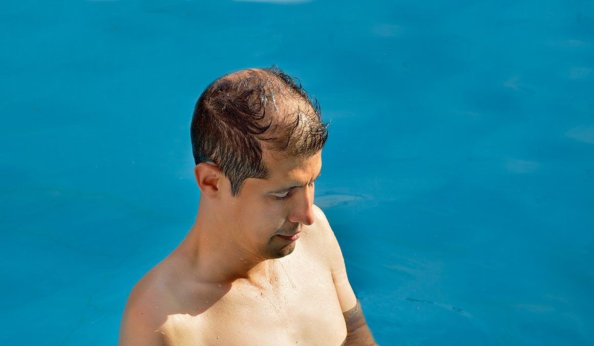 How to Protect Your Scalp from Sun Damage