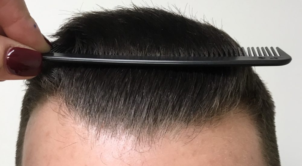Mosaic Hair Restoration at Miami Hair Institute (After Photo)