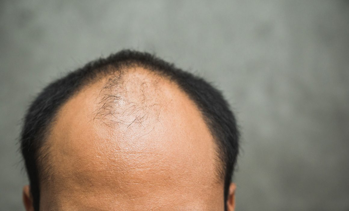 Are COVID-19 Patients Experiencing Hair Loss?