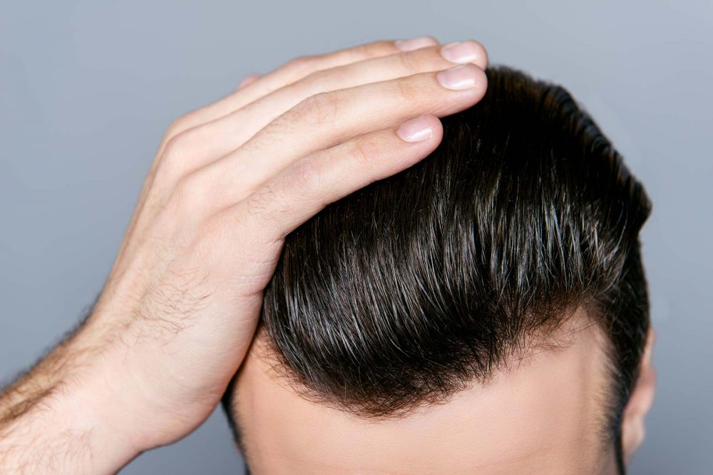 What Men Should Know Before a Hair Transplant