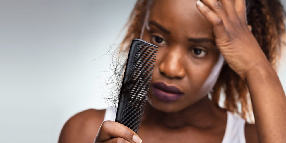 More Women Are Opening Up About Their Hair Loss Issues