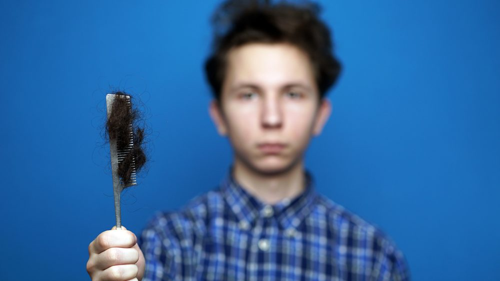 5 Common Causes For Hair Loss In Teenage Boys
